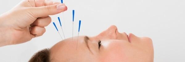 chữa đau đầu kéo dài
