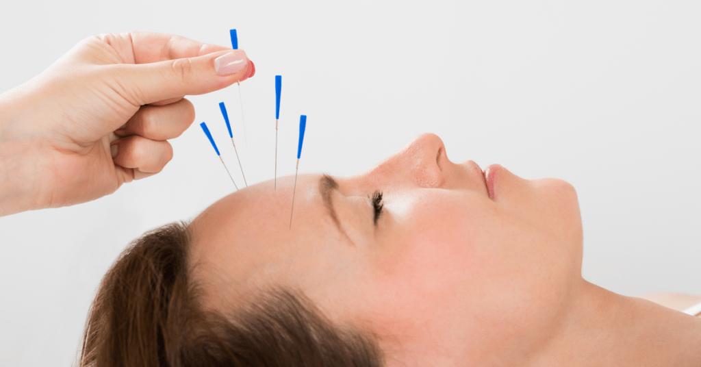 điều trị chứng đau đầu kéo dài