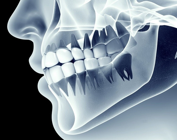 chụp x-quang để xem tình trạng răng ở bà bầu