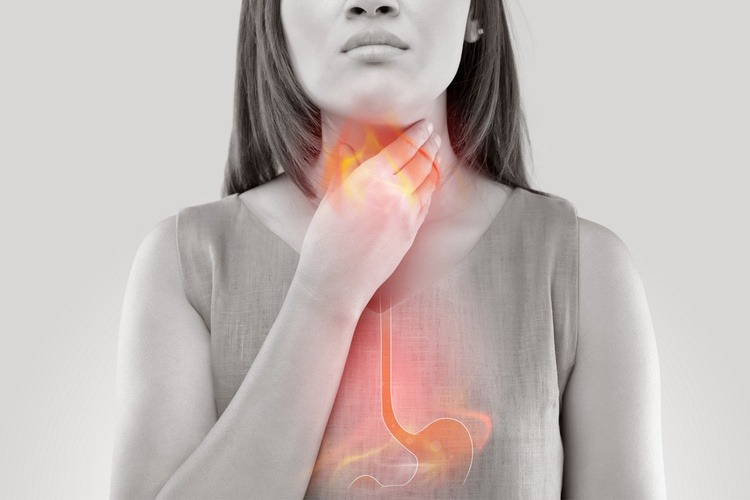 Đau họng liên quan đến bệnh trào ngược dạ dày thực quản