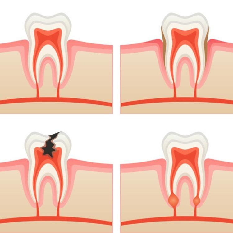 Đau răng cấm do áp xe răng