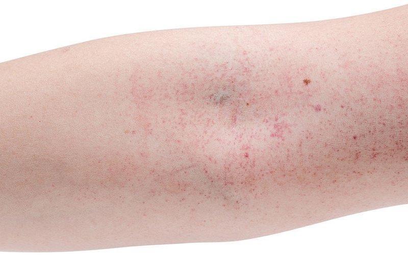 phát ban do sốt xuất huyết