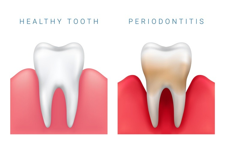 viêm nha chu gây đau răng cấm