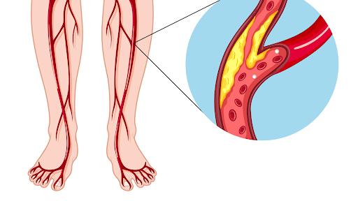 Xơ vữa động mạch làm tắc nghẽn mao mạch khi truyền máu, dễ dẫn tới tình trạng đau nhức mông