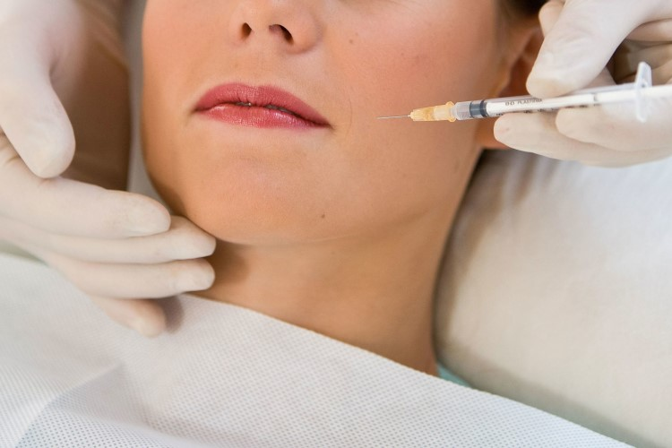 Tiêm botox có tác dụng giảm đau cơ hàm và có hiệu quả kéo dài nhiều tháng