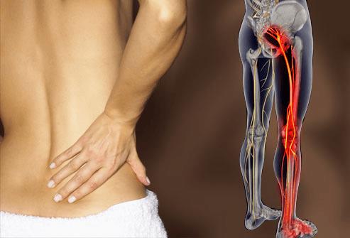 Đau thần kinh toạ sẽ có các triệu chứng giống như đau nhức mông