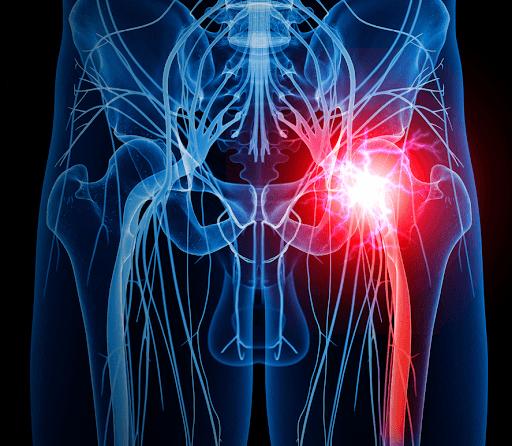 đau cơ mông và ảnh hưởng từ bộ phận trong cơ thể