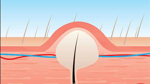 u nang lông ảnh hưởng đến đau cơ mông