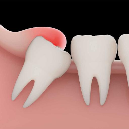 đau răng khôn là tình trạng xuất hiện do mọc lệch