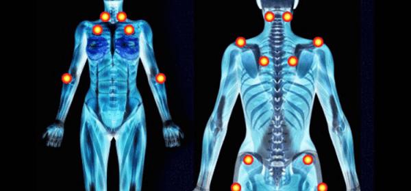 Những khu vực trên cơ thể thường xảy ra các cơn đau