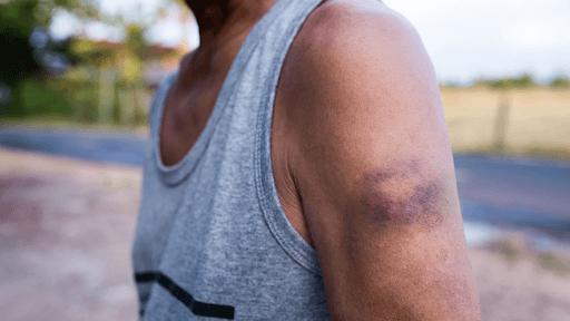 Phần lớn các trường hợp đau nhức bắp tay hoặc đau nhức hai cánh tay đều đến từ việc chấn thương do rèn luyện thể chất