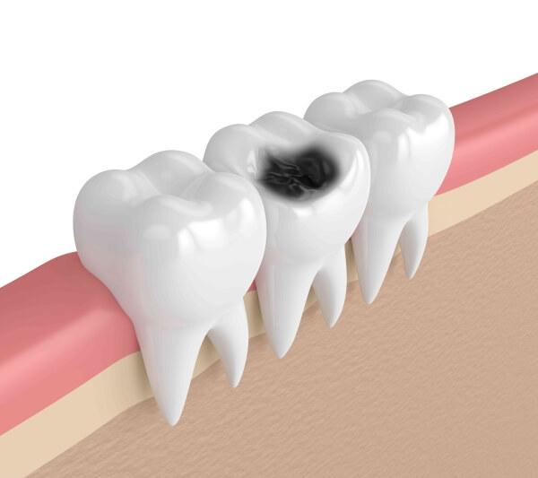 sâu răng hàm ở trẻ