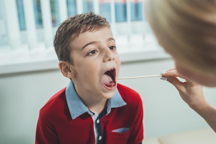 đau họng liên cầu khuẩn ở trẻ em