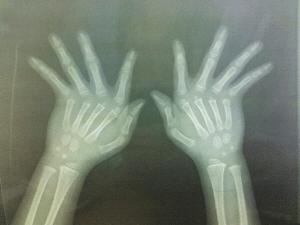 khớp ngón tay bị trật