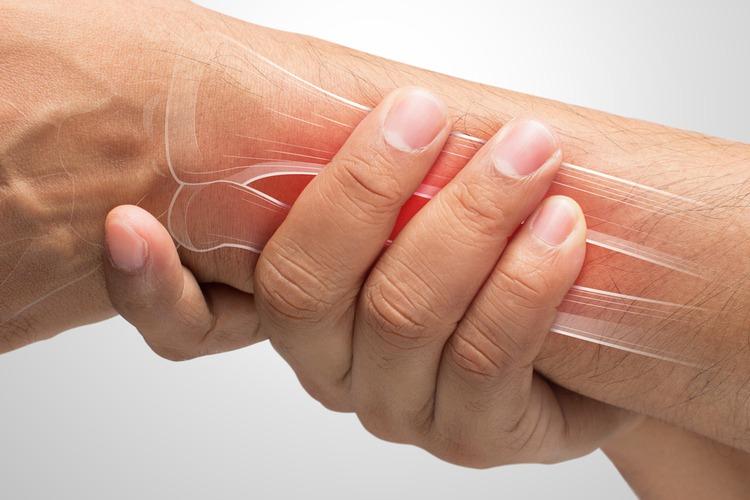 viêm khớp cơ tay
