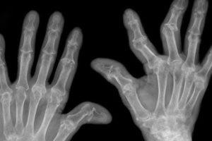 viêm khớp ngón tay