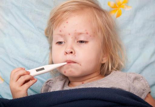 bệnh sởi ở trẻ