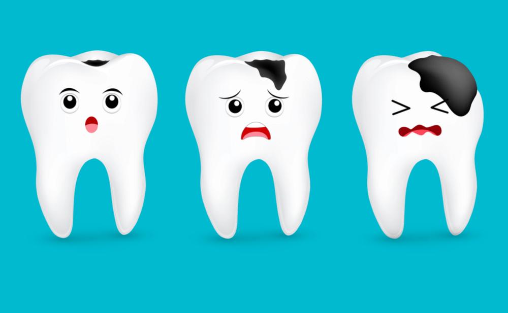 giảm đau do sâu răng hàm