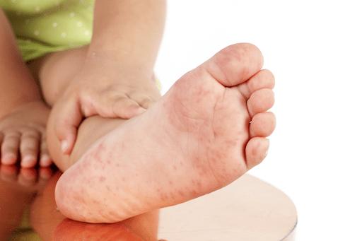 Nếu bé trẻ bị sốt phát ban trong lòng bàn tay hoặc bàn chân thì rất có thể bé đã bị bệnh tay – chân – miệng.