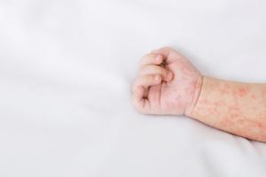 Sốt phát ban là bệnh rất thường xảy ra ở trẻ nhỏ.