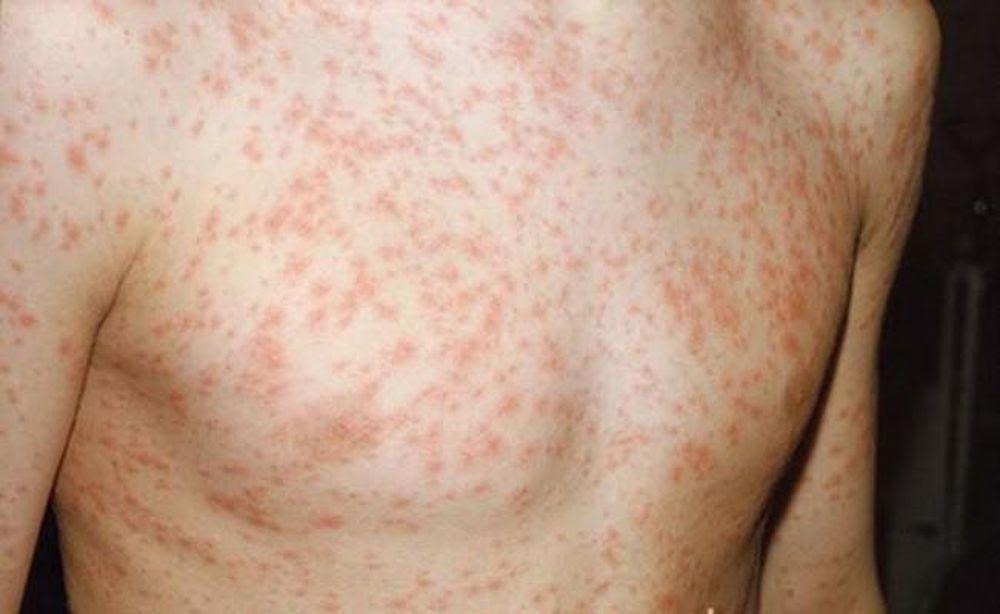 Sốt phát ban là bệnh truyền nhiễm do virus gây ra với biểu hiện đặc trưng là sốt cao kèm phát ban màu đỏ hoặc màu hồng trên da