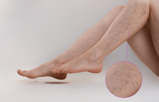 Suy giãn tĩnh mạch chân gây đau nhức chân kèm theo các triệu chứng nặng nề, khó chịu