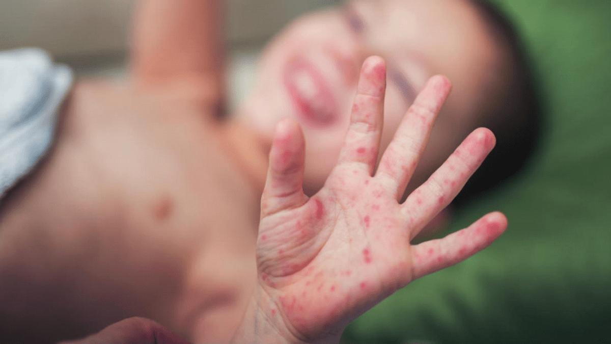 Trẻ em rất dễ mắc bệnh tay chân miệng