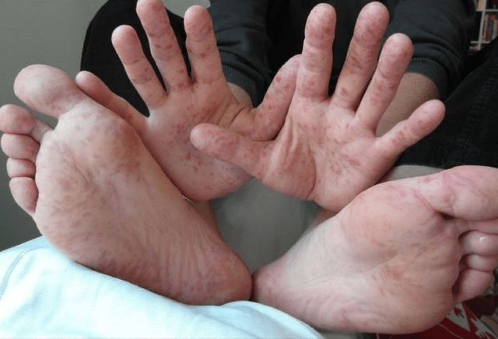 Nếu không được chăm sóc đúng cách, bệnh tay chân miệng có thể để lại sẹo