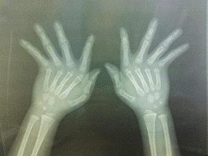 Triệu chứng đau khớp cổ tay